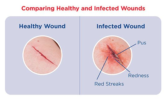Comparing Healthy and Infected Wounds
